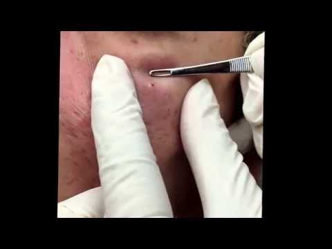 Popping blackheads and extracting milia the way you like it.