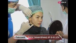 Video Nikita Mirzani Tanam Benang di Wajah, Berapa Biaya yang Dihabiskan? - i-Tainment 22/08 MP3, 3GP, MP4, WEBM, AVI, FLV November 2018