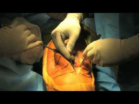 surgery - Total Knee Replacement Surgery 2011 - HD.