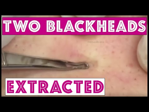 Sweet Little Back Blackheads