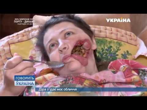 дыра в горле от курения