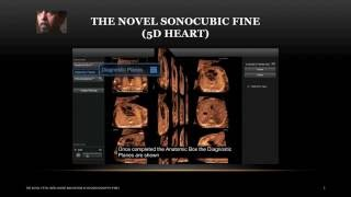 Click on the link to buy full version of this lecture http://panoramascan.com/ultrasound-education/online-ultrasound-courses/introduction-to-5d-heart-lecture/Fetal Intelligent Navigation Echocardiography (Sonocubic FINE/5D Heart)5D heart is an innovative software created by Mr. Gustavo Abella and his team to enable busy doctors who perform fetal echocardiography to display the 9 diagnostic planes recommended by the American Ultrasound Institute in Medicine (AUIM) guidelines, through obtaining a STIC loop (volume acquisition) with the addition of virtual Intelligent sonographer assistant (VISA).In this HD p720 video lecture you will learn:What is Volume Dataset.Why we need fetal intelligent navigation.Difference between manual navigation and intelligent navigation.Simple concepts of fetal intelligent navigation.Acquisition pre-requisites, problems and technique.Steps to acquire successful acquisition.5D heart workflow.The Anatomic Box.The Diagnostic Plane.How to label cardiac structures automatically.When and why use VISA.Why do we use fetal intelligent navigation echocardiography.What are the clinical benefits if using fetal intelligent navigation echocardiography.