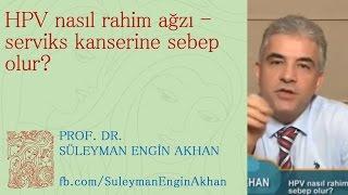 HPV nasıl rahim ağzı - serviks kanserine sebep olur? - Prof. Dr. Süleyman Engin Akhan