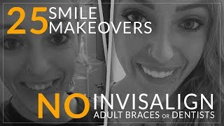 Youtube Video Invisalign Alternative!- No Dentist Smile Makeovers! Brighter Image Lab