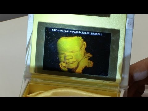 ultrasound 3d 4d - Pioneer has announced a service that prints the expressions of unborn babies as 3D holograms, using a compact full-color hologram printer developed by the co...