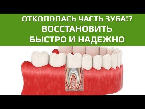 Зубная коронка при треснувшем зубе