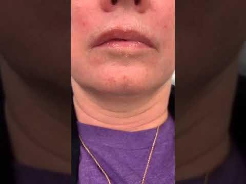 Lip Thread Lift Part 1