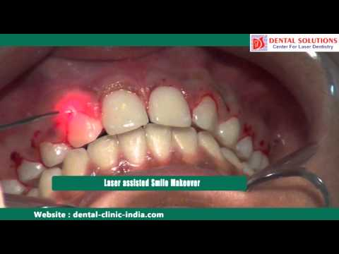 Laser Cosmetic Surgery Bangalore | Smile Makeover Treatment India