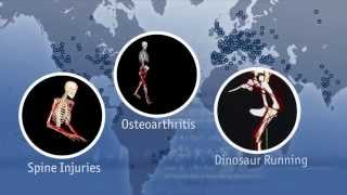 OpenSim: Improving Treatments for Movement Disorders through Computer Simulations