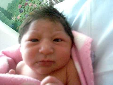 My beautiful Paris Twin born with Microcephaly