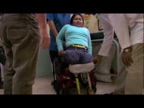 hemipelvectomy Janet Susdorf-Chadwick walking for first time on