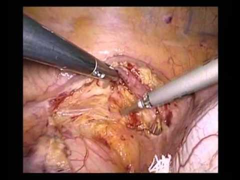 Видеоторакоскопическая наддиафрагмальная ваготомия (epiphrenic thoracoscopic vagotomy)