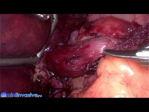 Лапароскопическая гастропликация + фундопликация по Ниссену. Операции при ожирении.