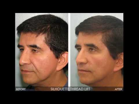 Real Patients, Real Results! (Threadlift)