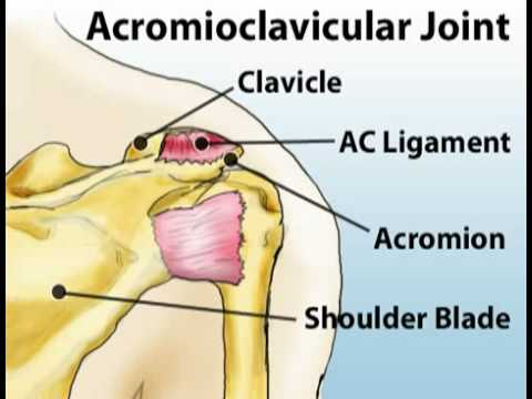 shoulder - Shoulder injuries can be devastating to mobility...and your game! Let's look at various types of shoulder pain.Watch More Health Videos at Health Guru: http:...