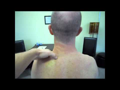 how to cure neck spasms