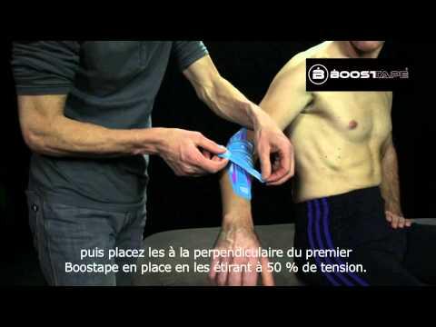 comment guerir tennis elbow