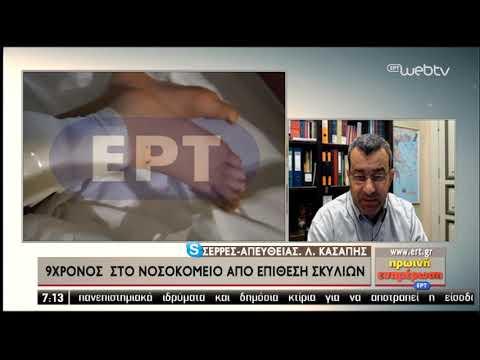 Εκτός κινδύνου ο μαθητής που δέχτηκε επίθεση σκύλων στις Σέρρες | 15/11/2019 | ΕΡΤ