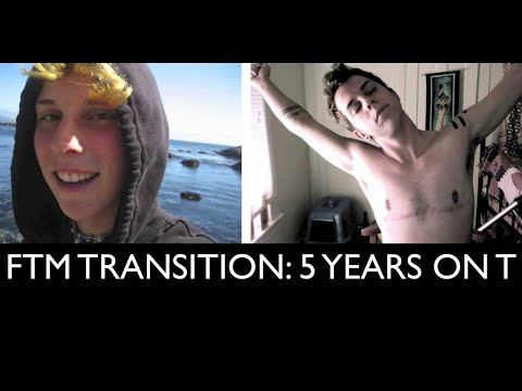ftm - I began taking testosterone on January 21, 2009! Today is my 5 year anniversary! Please read below for a short essay that talks about this video :) *Music in...