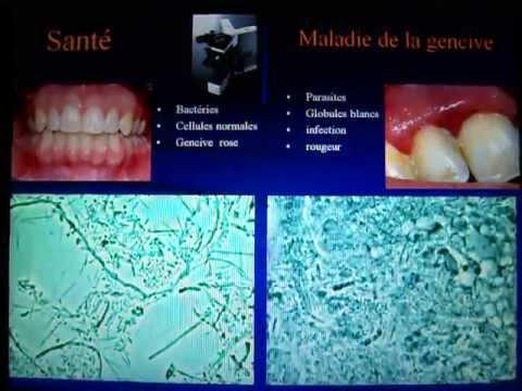 gencive - http://www.parodontite.com/ Biofilm tiré d'une gencive en santé et d'une gencive malade. Dans la santé on retrouveau microscope des bactéries anodines sous f...