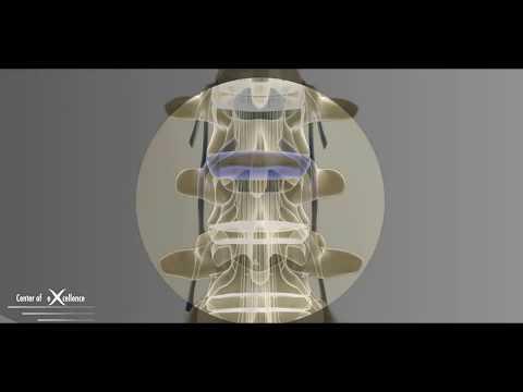 микрохирургическое удаление грыжи межпозвонкового диска в поясничном отделе