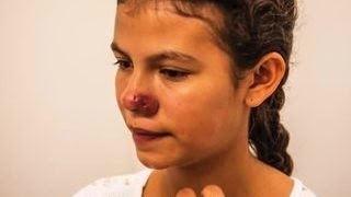 Сирийские беженцы завезли в Европу опасную болезнь
