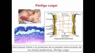Umh1947 2012-13 Lec001 Otras Enfermedades De Base Autoinmune (II)