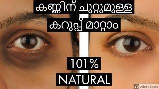 Video കണ്ണിന് ചുറ്റുമുള്ള കറുപ്പ് മാറ്റാം I 101% NATURAL I Malayalam I Blush with ASH MP3, 3GP, MP4, WEBM, AVI, FLV Januari 2019