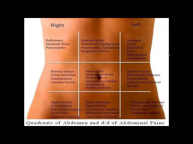 Abdominal Pain Picture Of Abdominal Quadrants With Organs