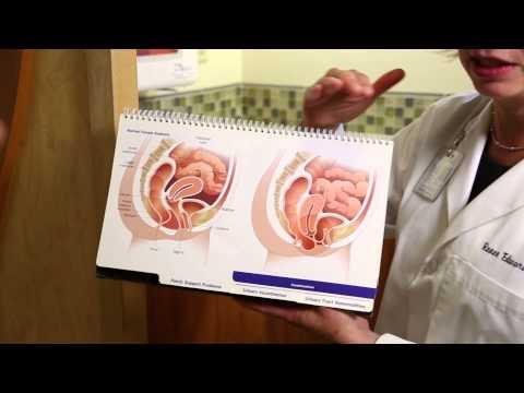 What is Pelvic Organ Prolapse?