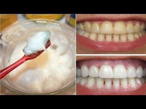 العرب اليوم - شاهد: وصفة مٌجرّبة تقضي على اصفرار الأسنان فورًا