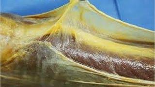 Explications sur les fasciae II (Aleman subtitulado en español)