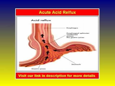 Acute Acid Relux