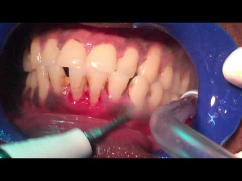 How to get teeth whitening in 15 minutes & get rid of bad breath with Ultrasonic deep Cleaning