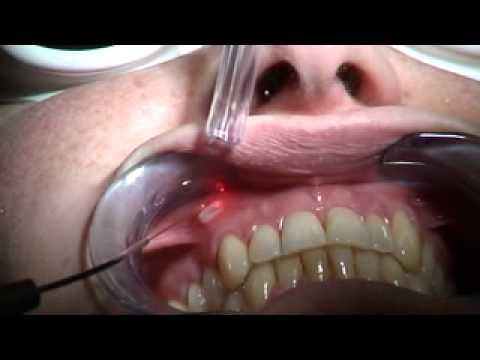 cura herpes truco solucion para herpes labial herpes labial