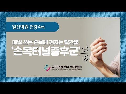 [국민건강보험 일산병원] 손목터널증후군