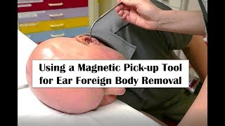 In this video we demonstrate several tools and techniques for removing a metallic foreign body from the external auditory canal.