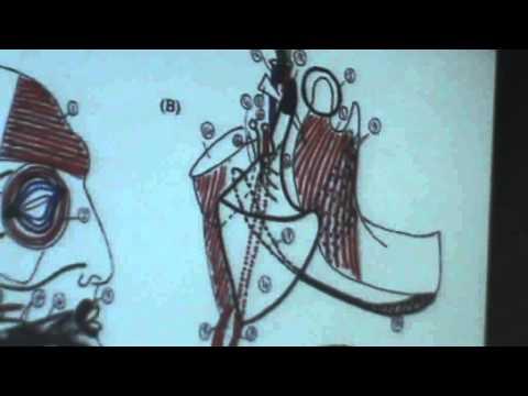 5) Dr.Ahmed Galal 19/10/2014 [ Parotid gland ]