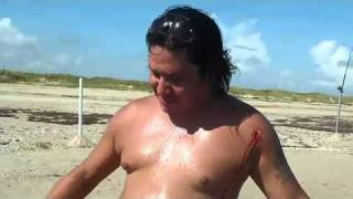 Video  Baby Shark Attacks Man Posing For Picture!