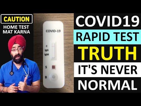 CoronaVirus: Rapid Antibody Test vs PCR test | what is Immunity Test | Dr.Education Eng Subs