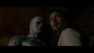 Most creative movie scenes from Victor Frankenstein (2015)