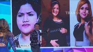 Video BROWNIS TONIGHT - Drastis !! Transformasi Barbie Kumalasari Dari Gemuk Jadi Singset (11/4/18) Part 2 MP3, 3GP, MP4, WEBM, AVI, FLV November 2018