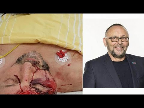 Γερμανία: Θύμα επίθεσης αγνώστων βουλευτής του ακροδεξιού AfD …