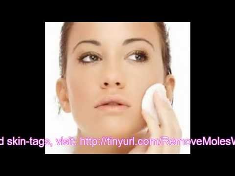 Flat Warts Treatment – What Are the Main Flat Wart Removal Methods