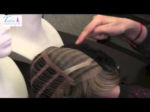 Pelucas para pacientes con alopecia