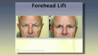 Video Introduction to Forehead Lift with Dr. Lawrence G. Kass, M.D. MP3, 3GP, MP4, WEBM, AVI, FLV Mei 2019