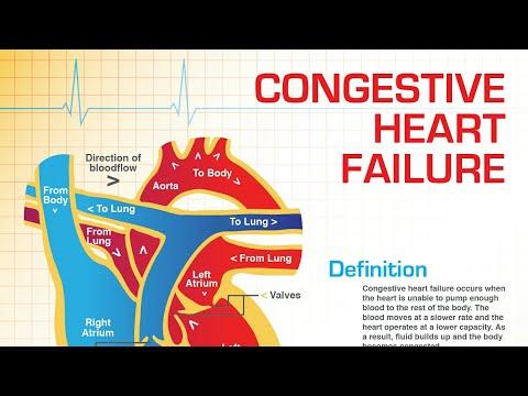 Heart failure  Congestive heart failure HINDI |cardiovascular system