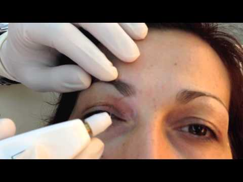 Not Surgical aesthetic blepharoplasty with PLEXR