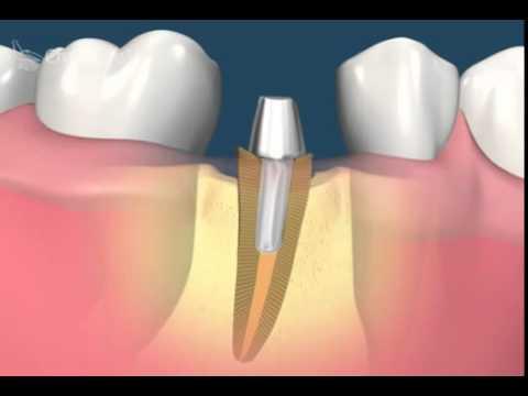 Оперативное вмешательство при трещине зуба