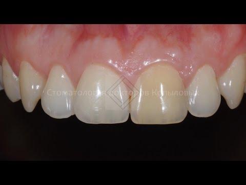 Внутреннее отбеливание зуба и домашнее отбеливание зубов. Teeth whitening.